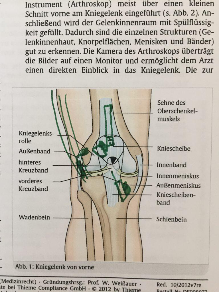 Gemütlich Hand Bänder Und Sehnen Ideen - Menschliche Anatomie Bilder ...